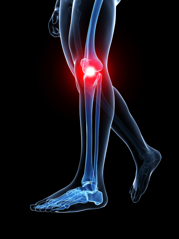 Atlanta Leg Pain Treatment