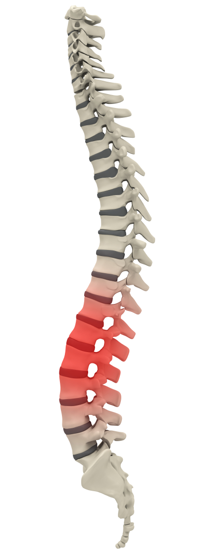Atlanta Herniated Disc Treatment
