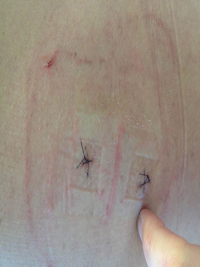 5 days after surgery of 2 level discectomy