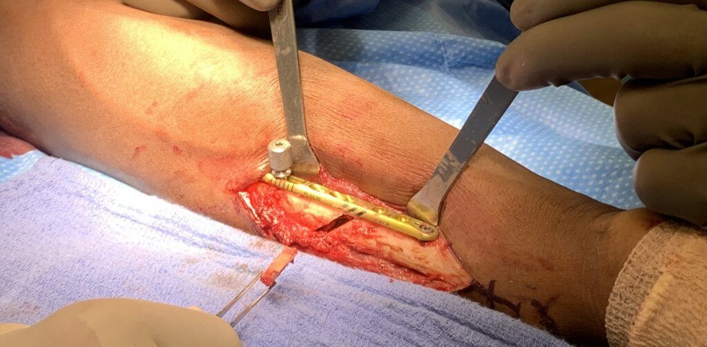 Surgical Picture for Ulnar Impaction Syndrome